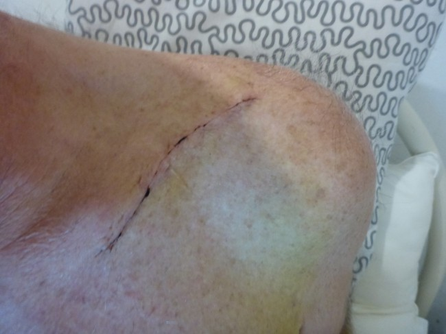 How it looks from the outside, two weeks after the operation. It's healed up nicely.